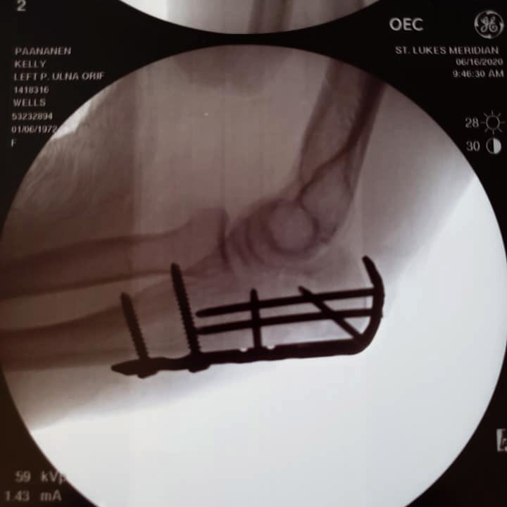 an x-ray of kelly's elbow with screws and plates